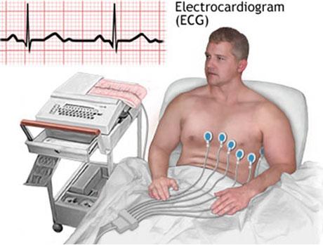12 Lead ECG machine