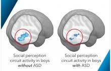Autism brain imaging in boys